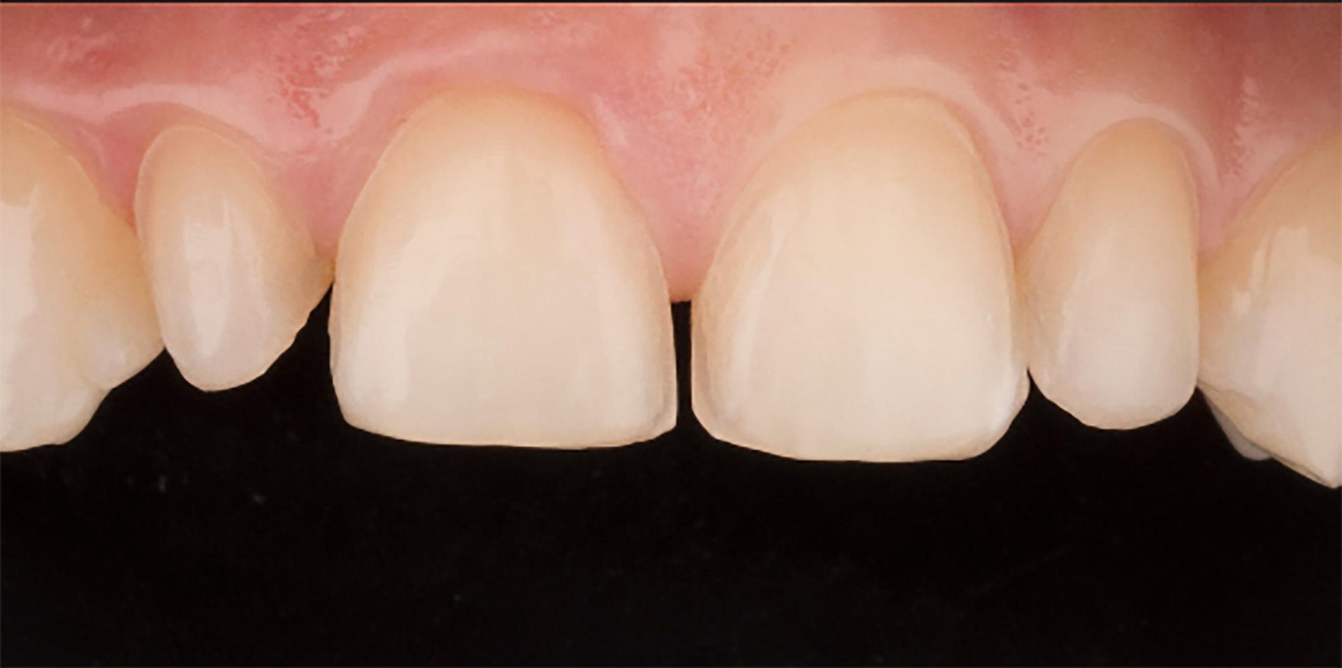 Зубы обработаны под виниры