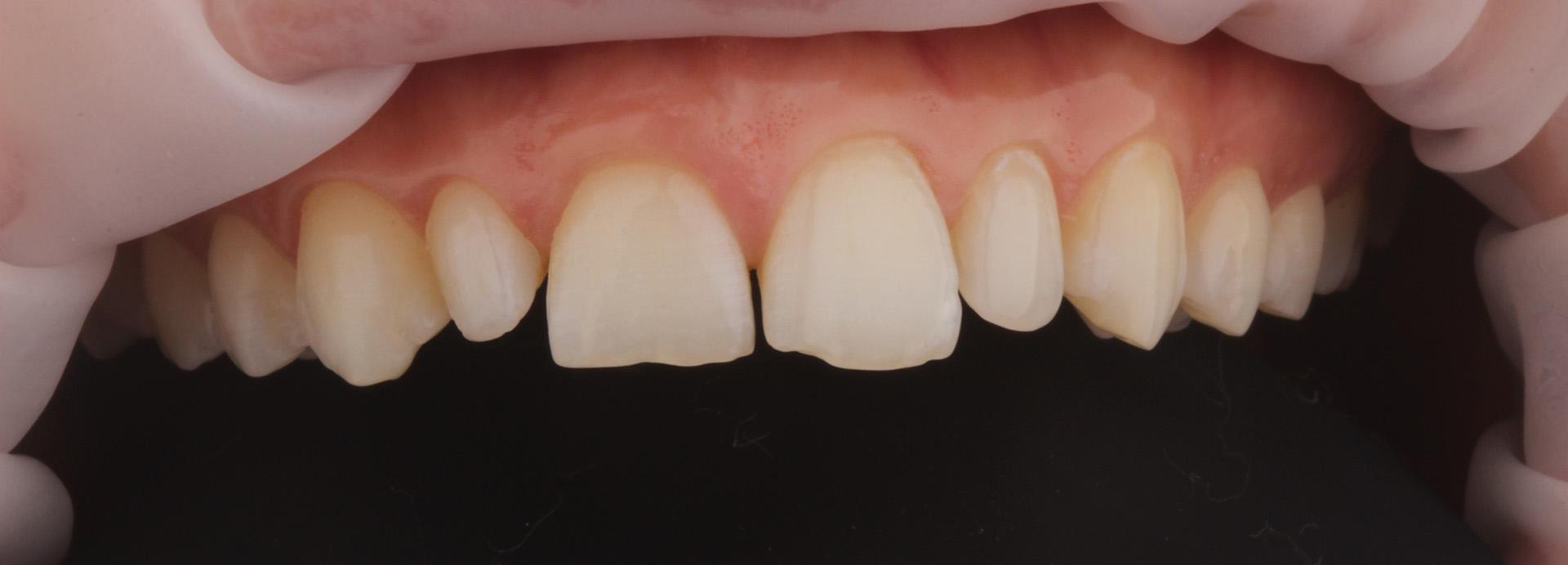 Зубы до установки виниров