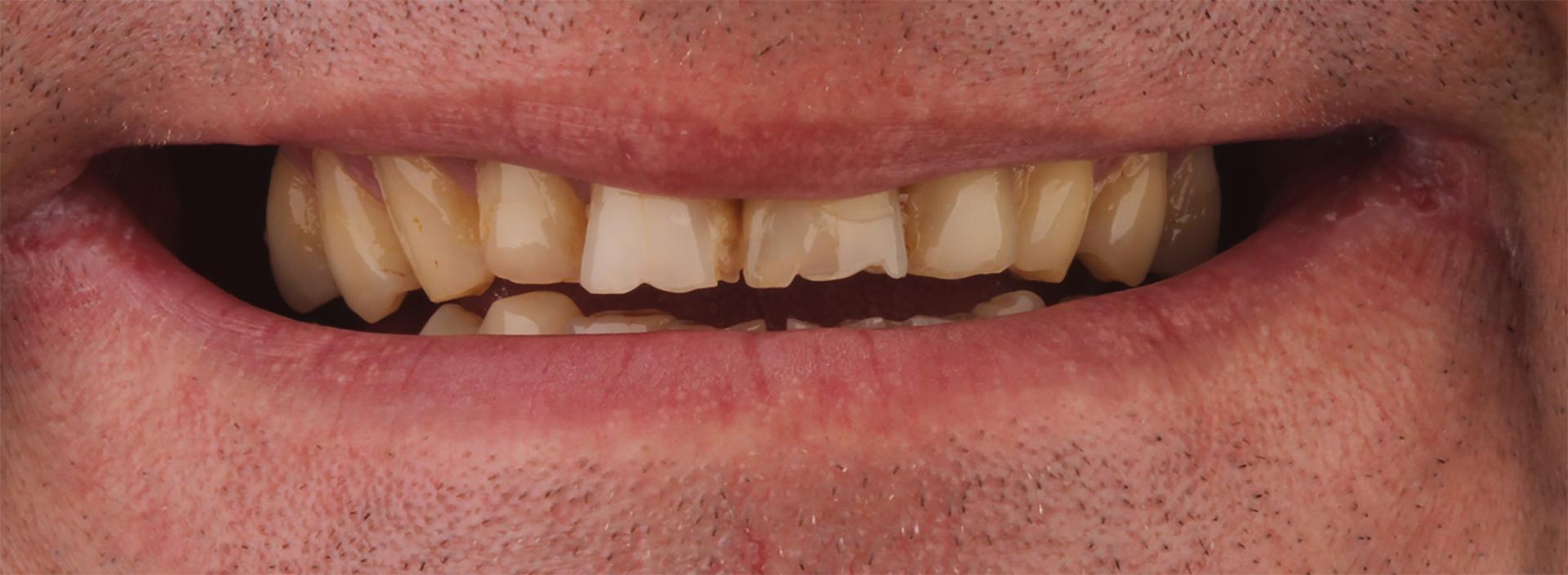 Зубы до виниров