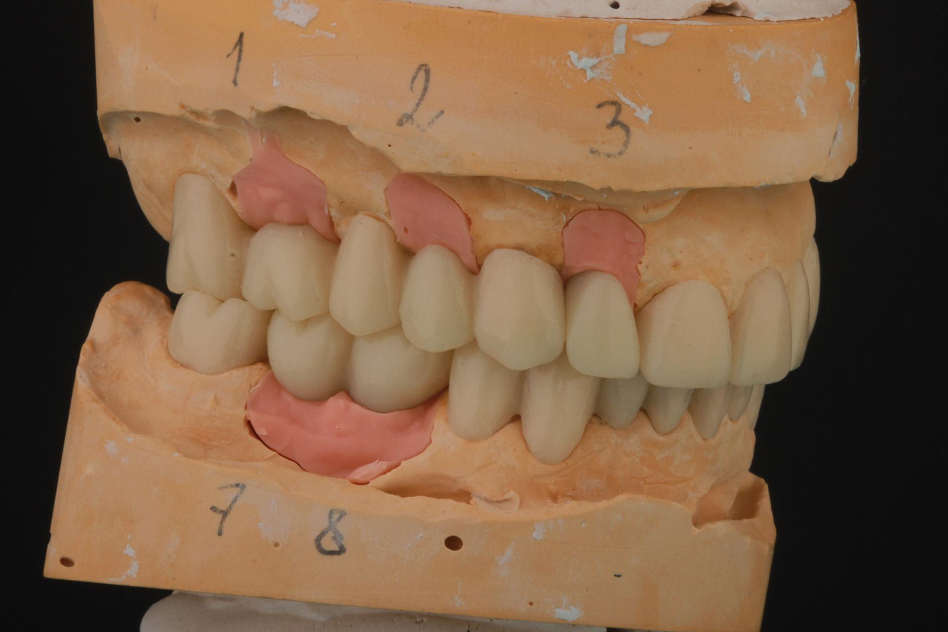 Вторая серия лечебных пластмассовых коронок, изготавливаемых после приживления имплантантов.