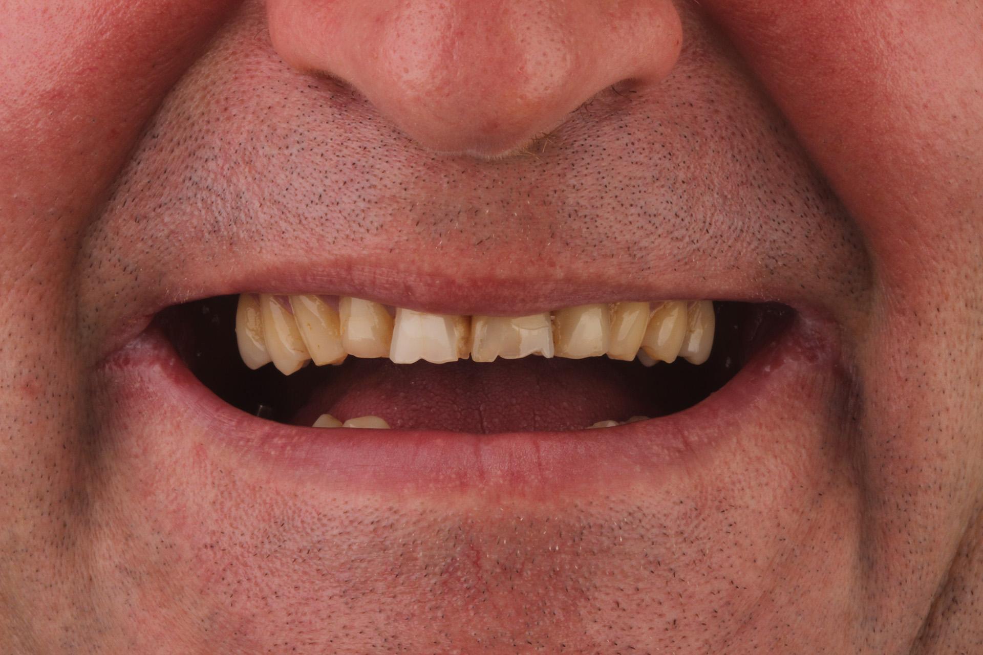 фото улыбки до консультации