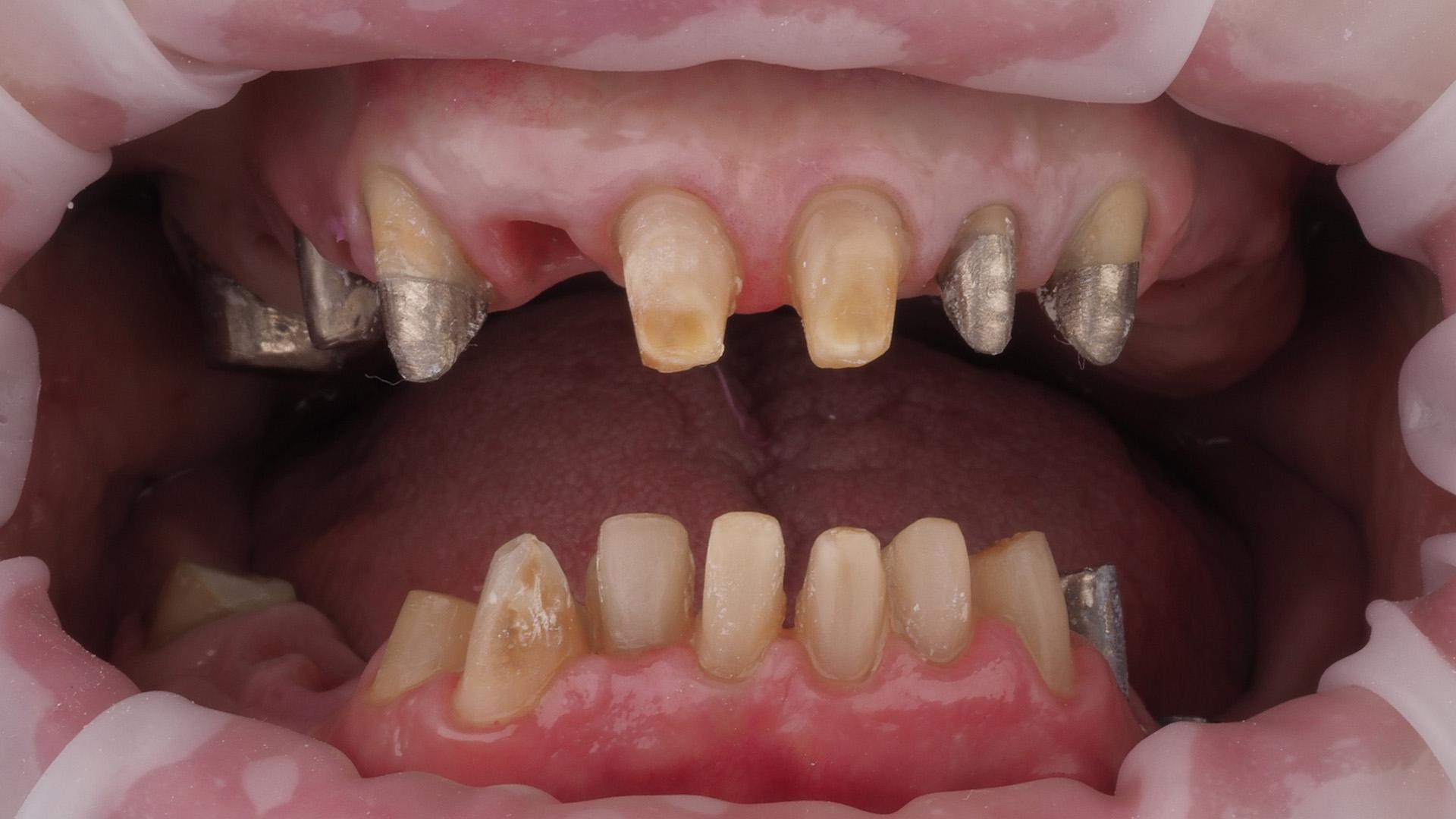 Зубы перед снятием оттисков