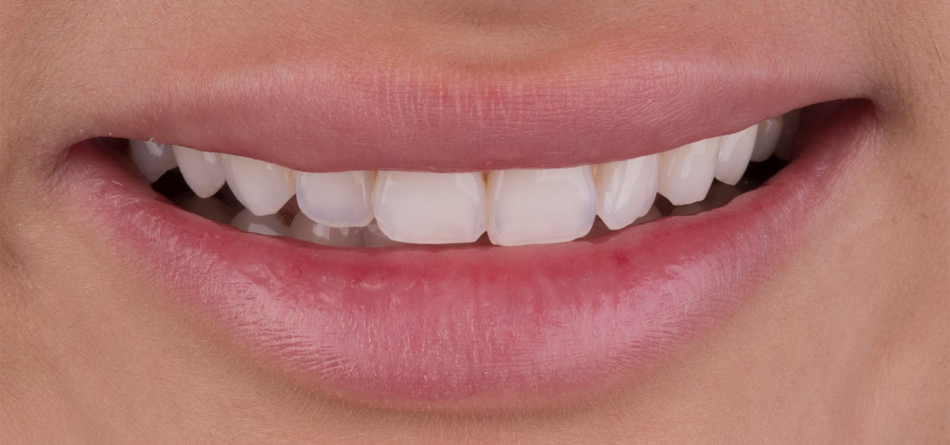 Как может незначительная коррекция винирами повлиять на красоту улыбки
