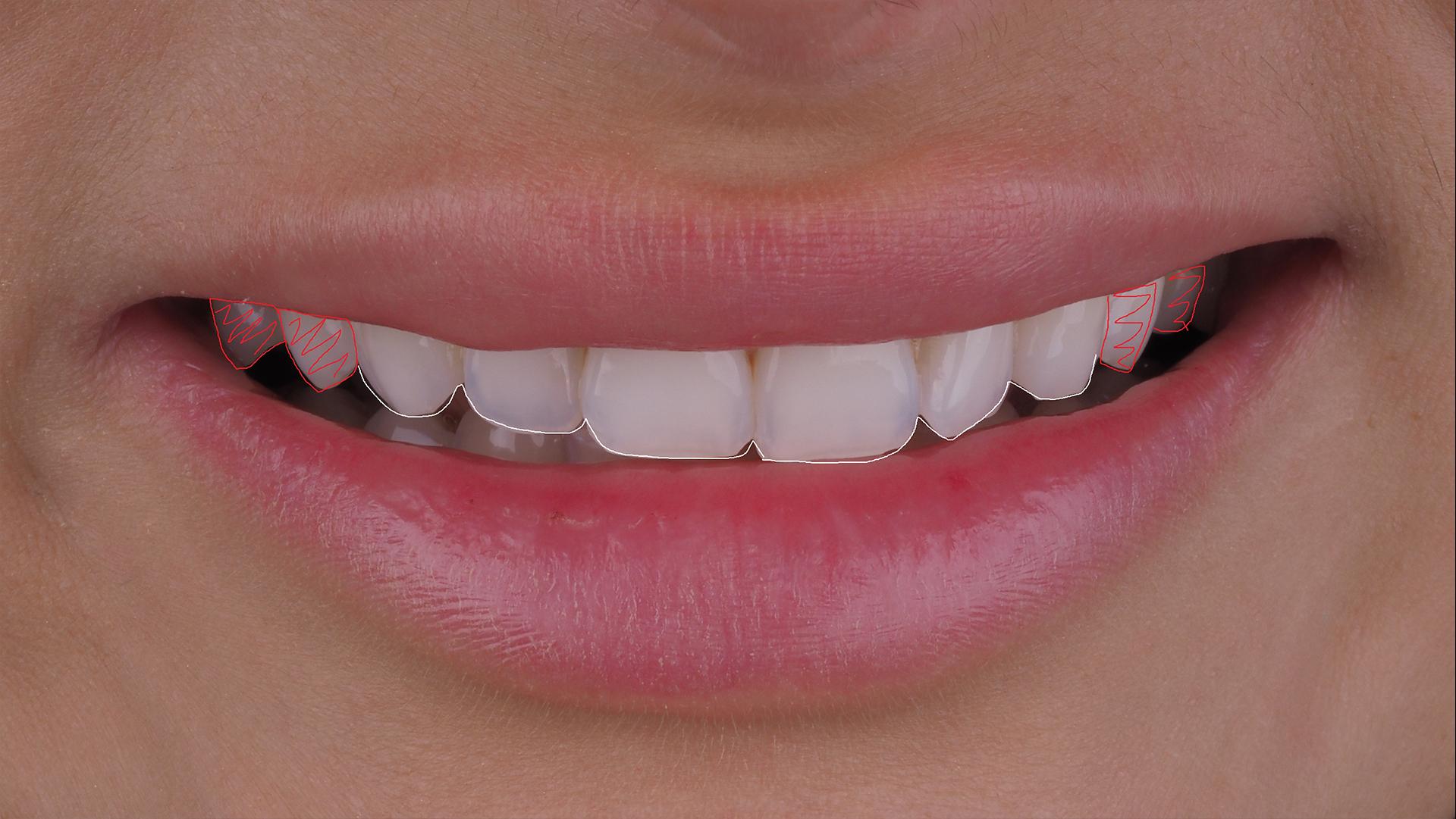 Белым цветом обозначены зубы, которые планируются покрываться винирами.