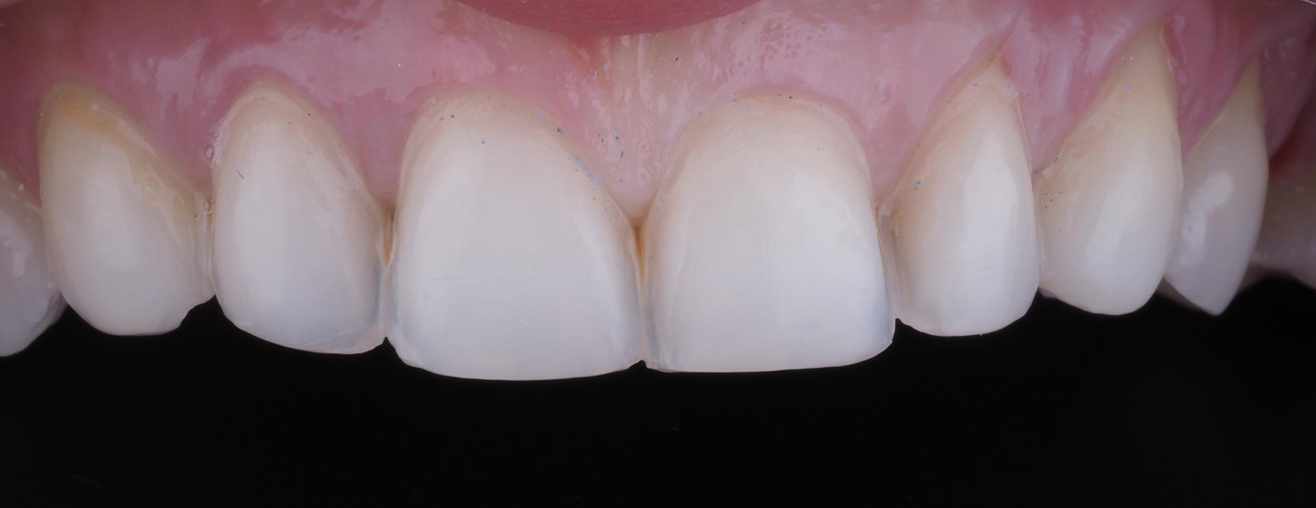 Зубы после обработки.